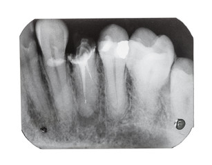 film with X-ray image of teeth with dental pin