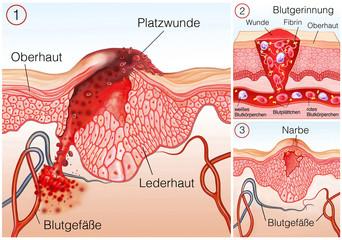 Platzwunde.Blutgerinnung.Haut