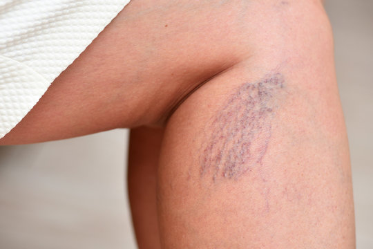 Varicose veins on female legs in the area of the knee and calves. Sipder veins thigh, close-up