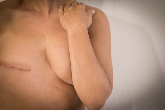 Cancer woman disease concept with cucasian woman without tits for mastectomy operation and scar on skin - unreocognizable female win cancer for healthy future