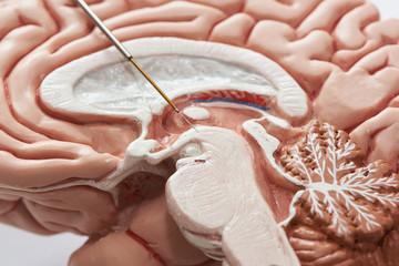 Concept of brain recording in subthalamic nucleus for Parkinson disease surgery.