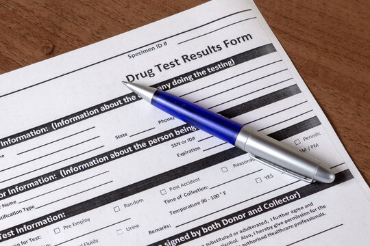 Drug test results form and pen blue color on the table, close-up
