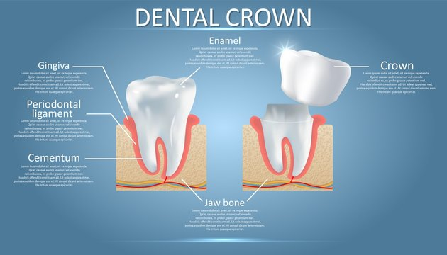 Human tooth and dental crown, vector educational poster