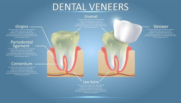 Dental veneers diagram, vector educational poster, diagram
