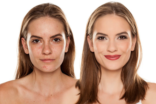 Comparison portrait of young beautiful woman before and after skin treatment and makeup on white backgeound