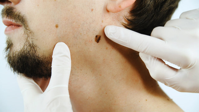 Doctor check-up of skin moles