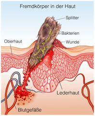 Fremdkörper.Splitter.Entzündung in der Haut