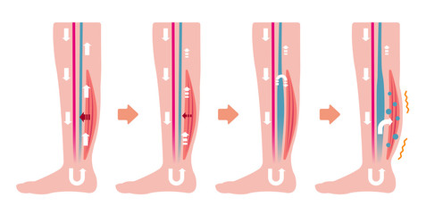 Cause of swelling(edema) of the legs. flat illustration (no text)