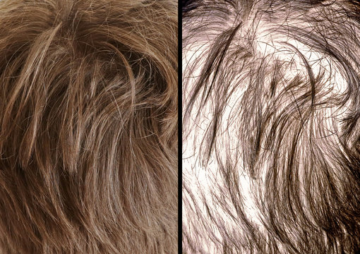 Hair loss visual comparing before and after both a thick head of hair and thinning hair