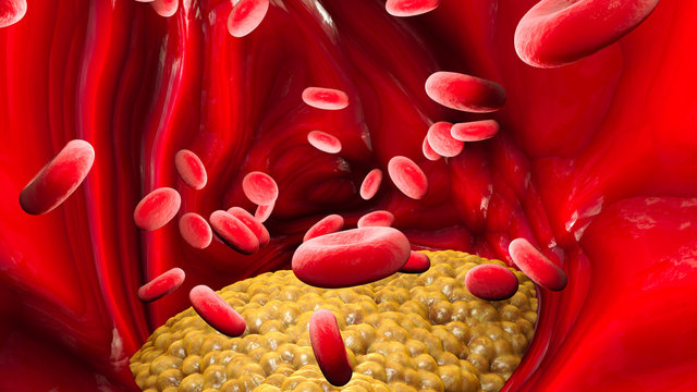 Cholesterol formation, fat, artery, vein, heart. Red blood cells, blood flow. Narrowing of a vein for fat formation, 3d render