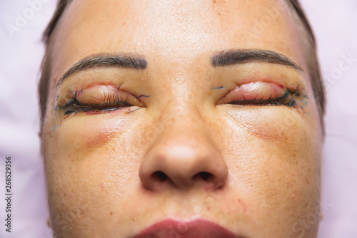 Woman after plastic surgery on the eyes  Stitches on the
