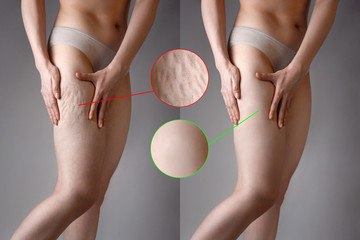 The woman shows cellulite and smooth and delicate skin on her legs. The concept of aesthetic medicine and skin imperfections. Images with magnification of cellulite and delicate skin. Before and after