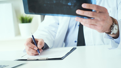 Close up of male doctor holding x-ray or roentgen image and making notes in medical form.