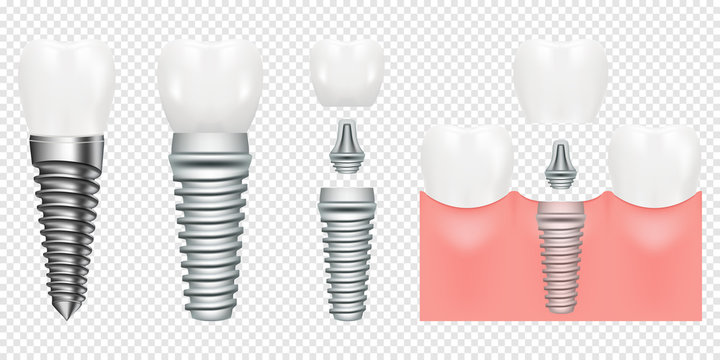 Human teeth and dental implant cut scheme, vector illustration. Dental implant structure with all parts crown, abutment, screw. medical pictorial. Vector illustration