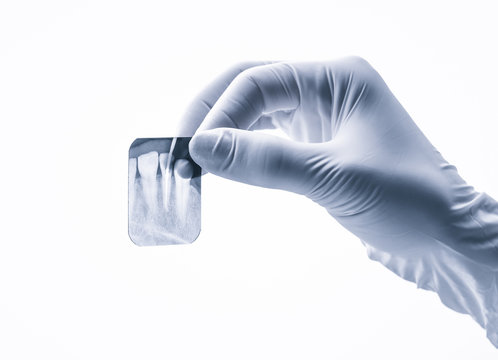 Closeup of hand in white glove holding small dental x-ray isolated on white background