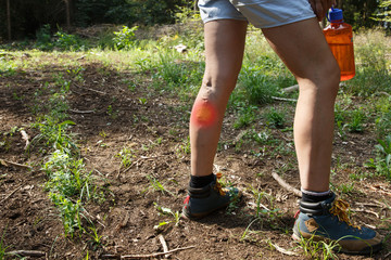 Woman with varicose veins on a hiking trip with red dot effect.