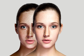 Closeup before and after portrait of beautiful brunette woman after laser treatment removing freckles on face looking at camera. makeup or cosmetology. indoor studio shot, isolated on gray background. Fototapete