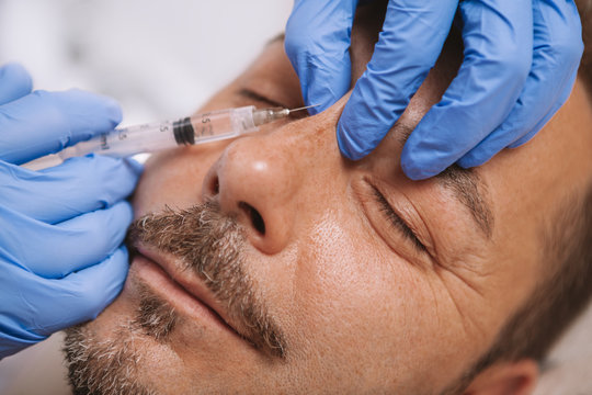 Cropped close up of a mature bearded handsome man getting non-surgical nose job. Professional cosmtologist doing liquid rhinoplasty procedure for male client