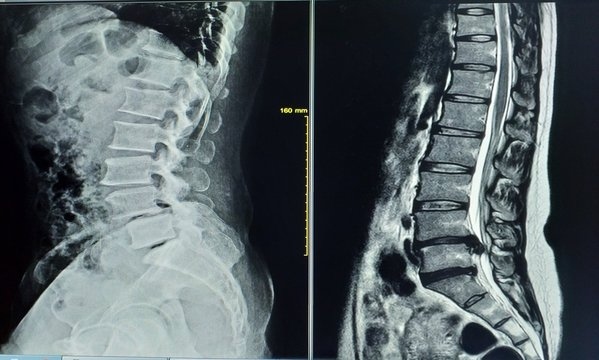 X-ray image Two views general x-ray and MRI lumbar spine showing Herniated nucleus pulposus of L4-L5 intervertebral disc,medical image concept.