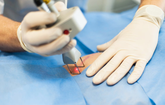 The doctor makes a laser correction of the scar on the skin