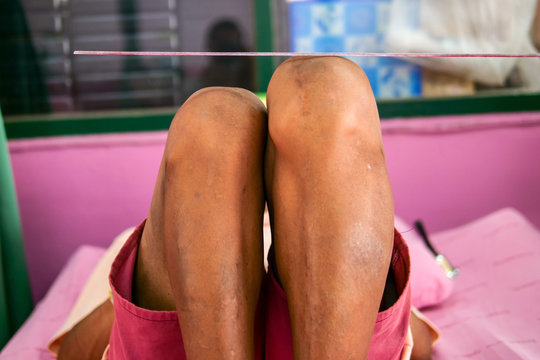 Leg Length Discrepancy (LLD)