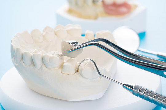 Close up Implan model tooth support fix bridge implan and crown.