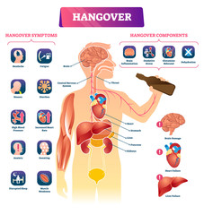 Hangover vector illustration. Labeled alcohol sickness explanation scheme.