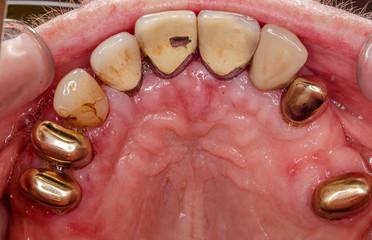 intraorales bild des oberkiefers nach eine erfolgreichen PAR Behandlung