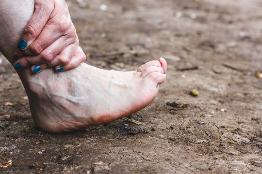 Person holding injured and painful ankle sitting on the ground – Woman massaging an Inflamed joint of her arthritic foot in nature