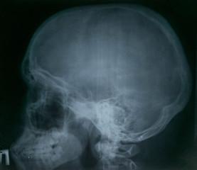 human skull x-ray image. medical background