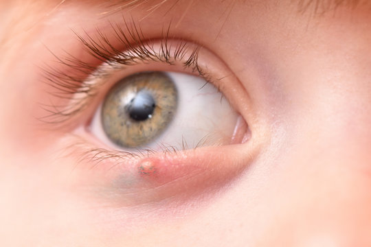 Children's right eye and swollen barley on the lower eyelid. Macro, close-up