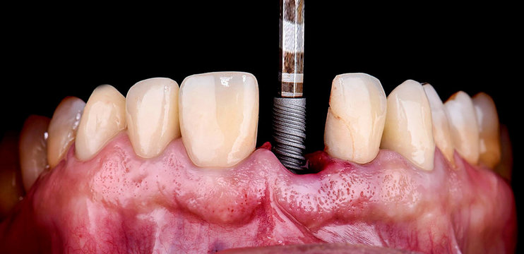 inserting the dental implant