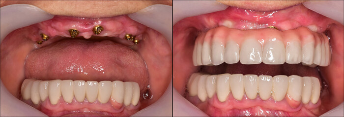 full mought reconstracting by implants and crowns