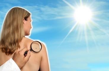 Frau mit Sonne und Muttermal