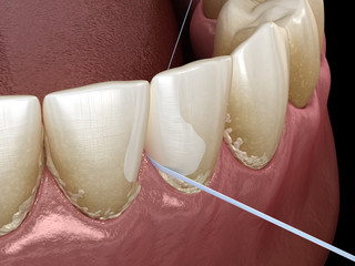 Oral hygiene: using dental floss for plaque removing. Medically accurate dental 3D illustration