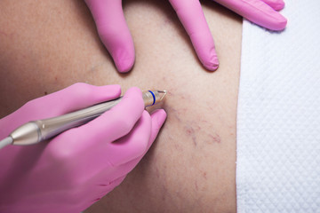 closeup of laser capillary removel procedure in medical clinic