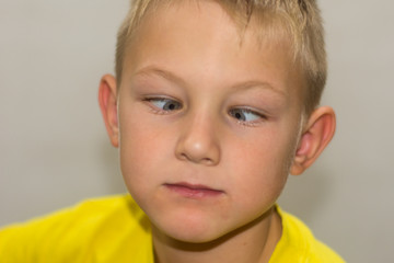 Young boy with green blue eyes and yellow shirt close up going cross eyed making a funny facial expression  Copy space.
