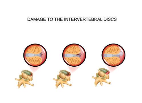 intervertebral disc damage. vertebra