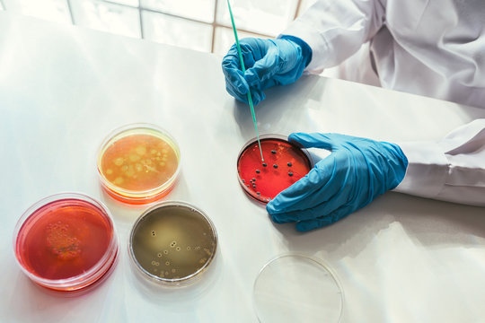 Woman working with petri dishes in the lab