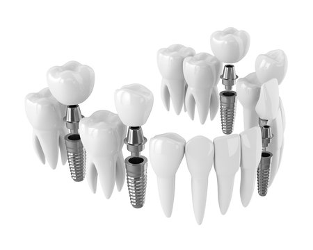 3d render of toothing with dental implants