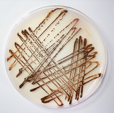 Sowing human feces in a petri dish