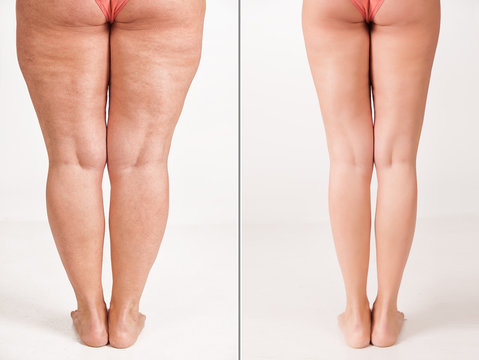 Comparison before and after weight loss. Women's legs. The result of liposuction. The fight against obesity and cellulite. Skin rejuvenation. Fitness and nutrition.