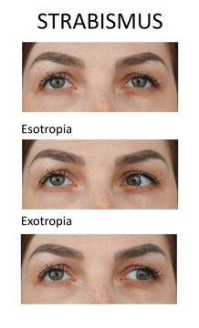 Types of Strabismus. Esotropia and exotropia