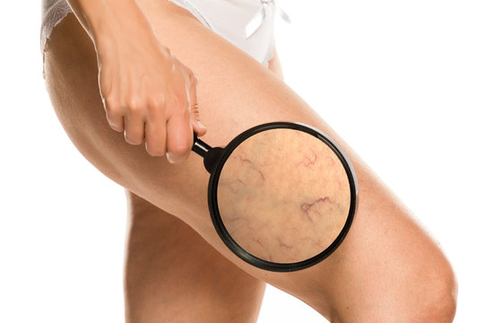 woman shows enlarged capillaries on her leg by magnifying glass on white background