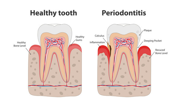 Healthy tooth and unhealthy tooth with periodontitis with gum inflammation infographic elements isolated on white background. Medical dental poster illustration in flat design.