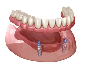 Mandibular removable prosthesis All on 2 system supported by implants with ball attachments. Medically accurate dental 3D illustration