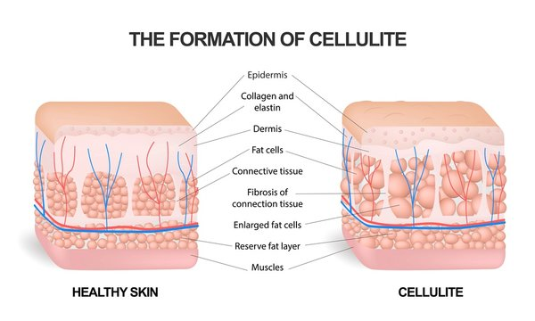 The formation of cellulite. Cellulite occurs in most females and rarely in males. Vector diagram. Comparative illustration of normal skin and cellulite s skin.