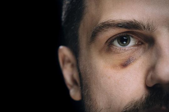 Man with bruise eye hematoma. Wounded victim with black eye.