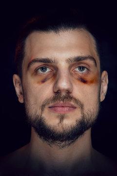 Young man with bruise black eye hematoma, violence victim.