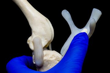 Foto auf Leinwand Gymnastik dog knee joint mold in the hand of the veterinarian and black background